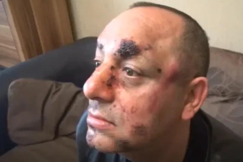 Потресаващо: Тираджии пребиха и ограбиха мъж, защото карал с 40 км